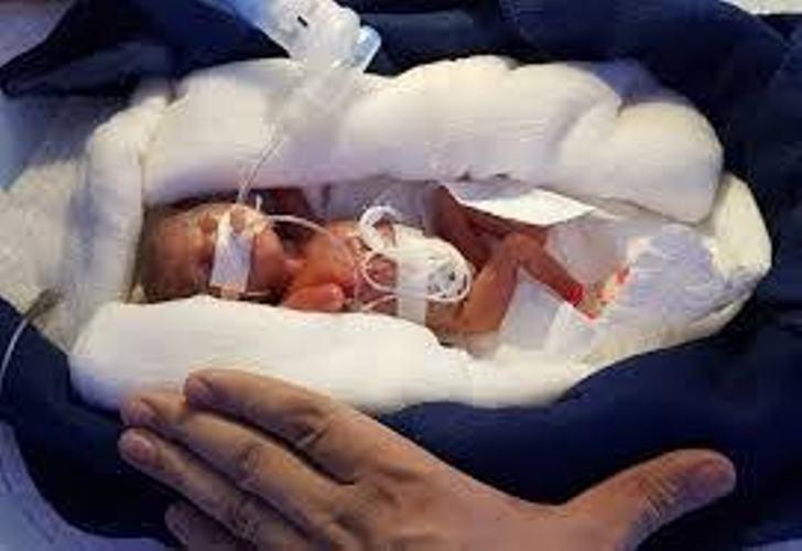 जम्मू-कश्मीरः 450 ग्राम की 'मिरेकल बेबी' को मिला जीवनदान, देश में दुर्लभ मामला