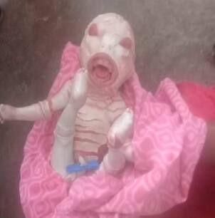 बड़ी-बड़ी आंखें और नवजात के जबड़े में थे दांत, Bihar में पैदा हुआ ऐसा बच्चा