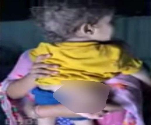 Punjab News: तीन पैर वाले बच्चे का डॉक्टरों ने किया सफल ऑपरेशन' मिला नया जीवनदान