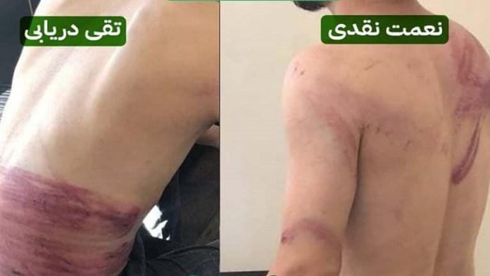 अफगानी महिलाओं का प्रोटेस्ट कवर करने गए 2 पत्रकारों के साथ तालिबान की बर्बरता, 4 घंटे में किया ऐसा हाल: क्या यही है शरिया?