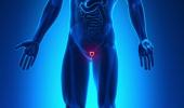 प्रोस्टेट कैंसर: जानिए इसके लक्षण और बचाव के तरीके